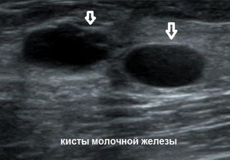 Киста молочной железы на узи
