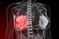 Узловая мастопатия: виды, симптомы, методы лечения