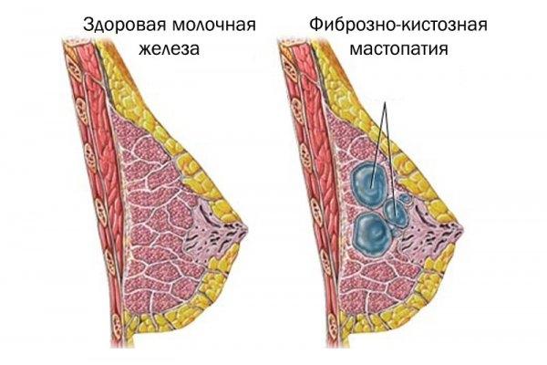 Узловая фиброзно-кистозная мастопатия